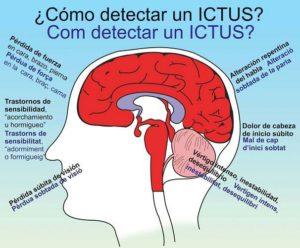 Cómo detectar un ictus