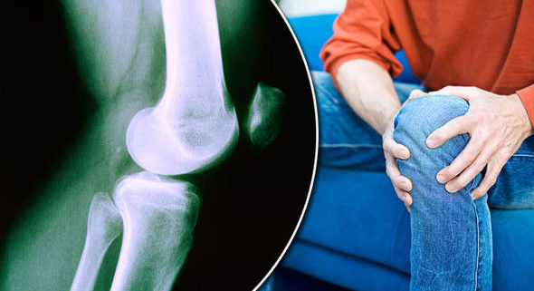Ayudas para la artritis reumatoide en Personas WIP